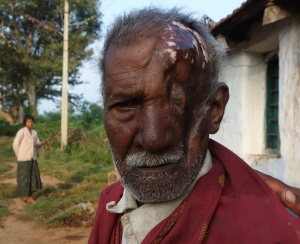 Bandipur villager mauled by bear